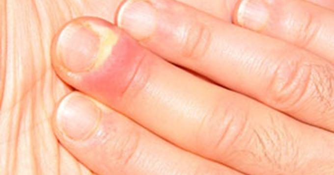 infection du doigt gonflé